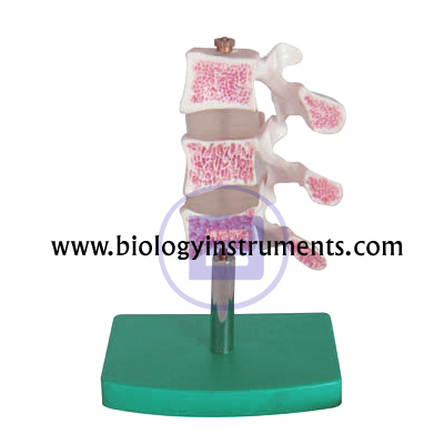 Cutaway Osteoporosis
