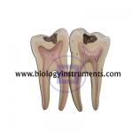 Human Teeth Lower Molar with Root