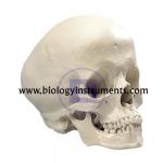 Hydrocephalic Skull